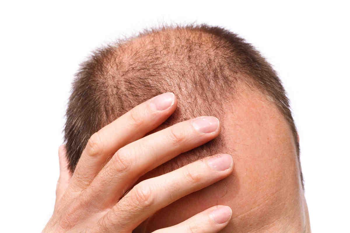 درمان ریزش موی هورمونی چیست