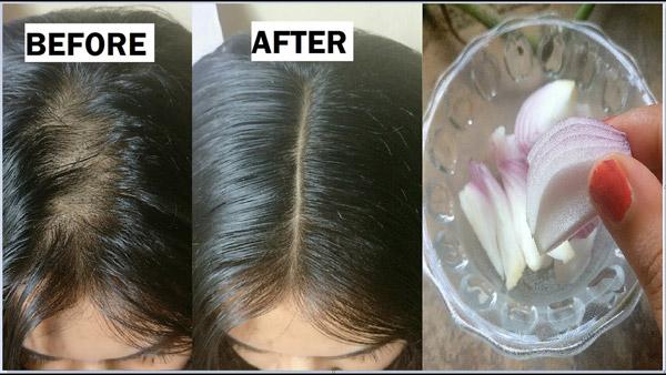 درمان ریزش مو سکه ای چیست